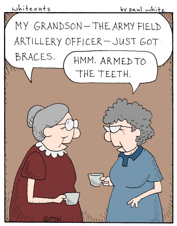 4-8-15 braces - color